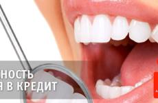 Где взять кредит на лечение зубов? Как поставить зубы в кредит?